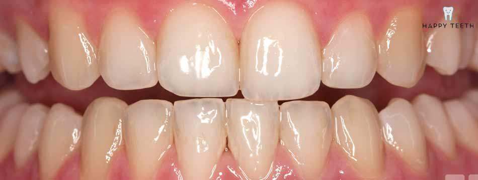 牙齒美白治療前A1