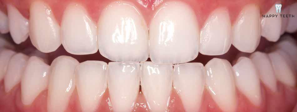 牙齒美白治療前A2