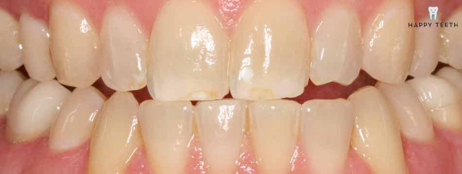 牙齒美白治療前B1