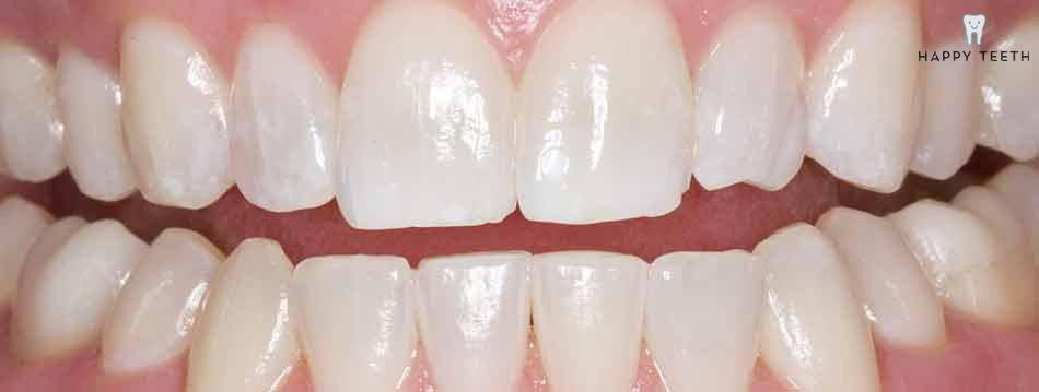 牙齒美白治療前B2