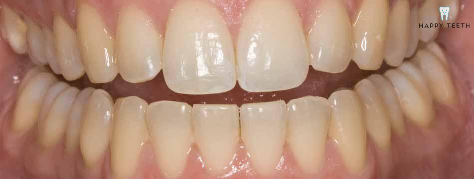 牙齒美白治療前C1