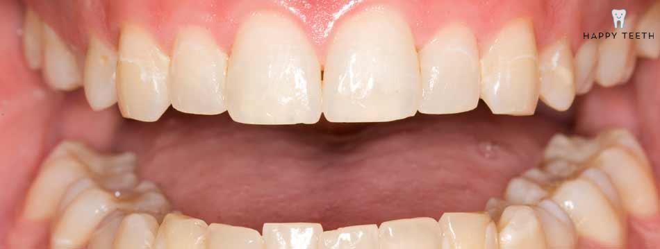 牙齒美白治療前D1