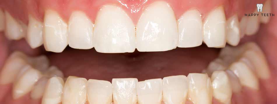 牙齒美白治療前D2