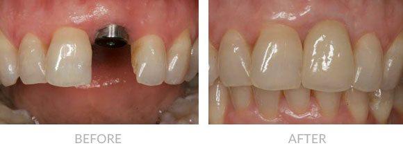 植牙前後比較