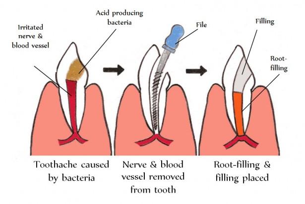 牙根管填補