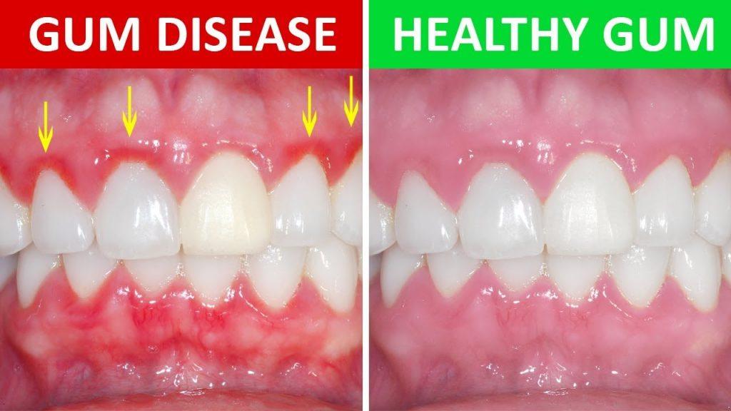 牙齦炎與健康牙齦