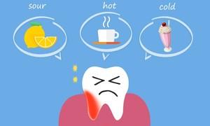 為什麼我有敏感性牙齒