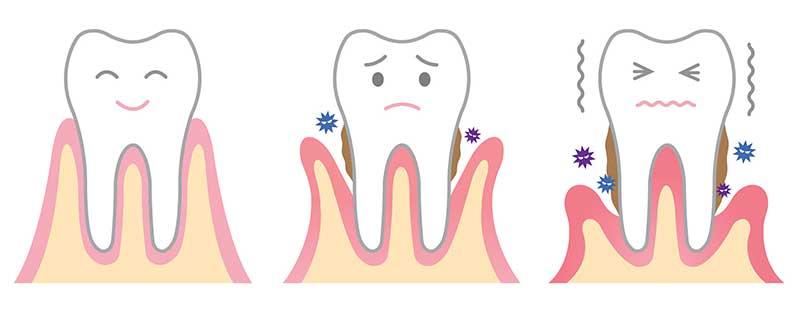 牙齦萎縮造成牙齒脫落