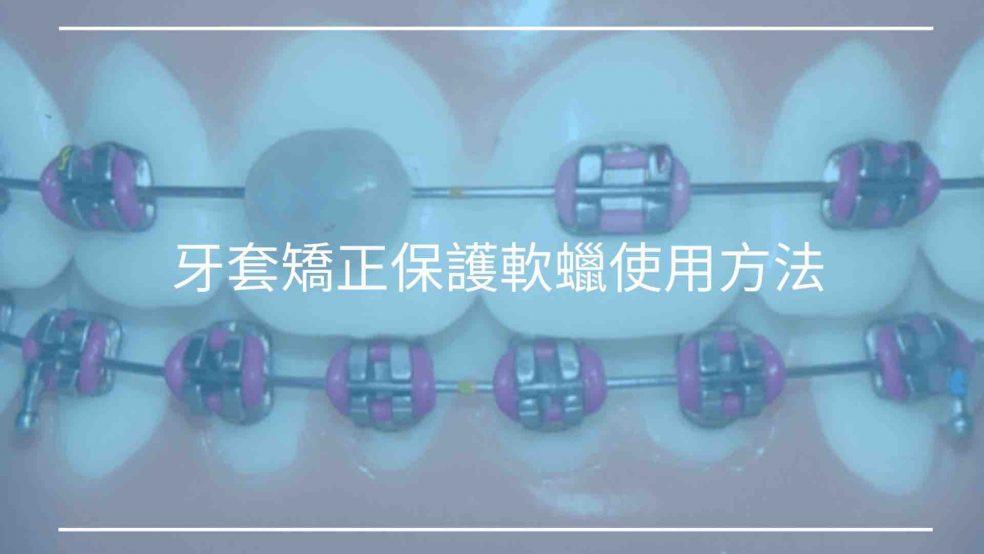 牙套矯正保護軟蠟使用方法
